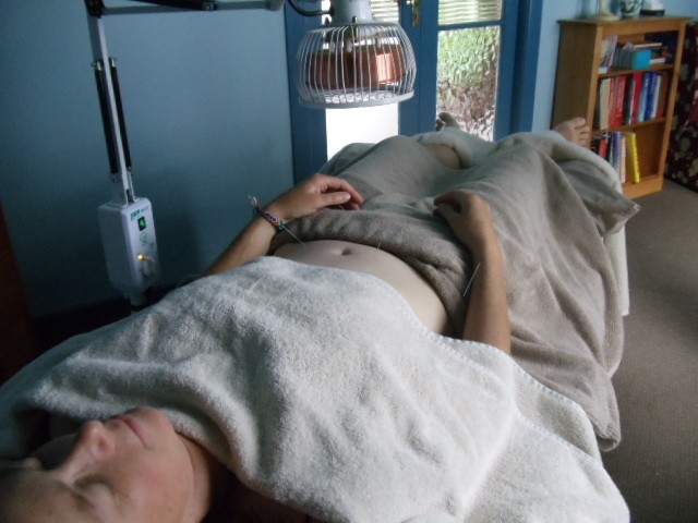 Acupunture treatments
